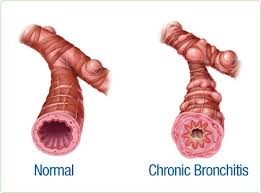 chronic-bronchitis.jpg