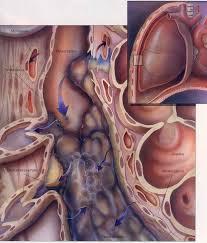 Pleural tuberculosis
