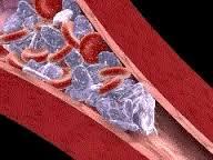 pulmonary vasoconstrictor